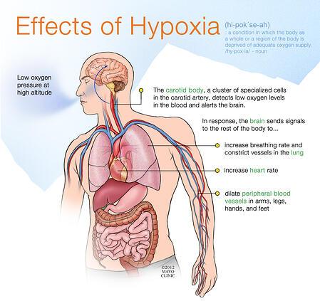 Hypoxia_Infographic