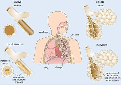 Chronic_Bronchitis_vs_Emphysema