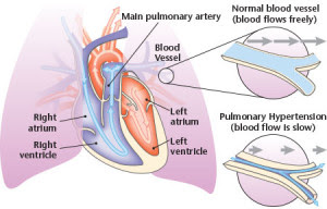 Pulmonary_Hypertension
