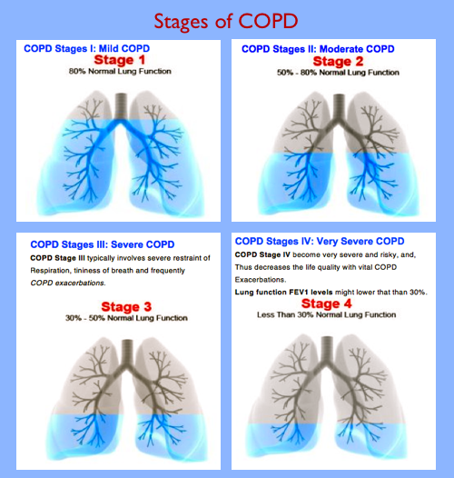 4-Stages-of-COPD.png