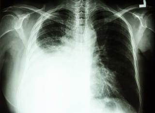 Black Lung.jpg