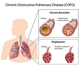COPD inflammation.jpg