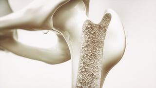 bone density.jpg