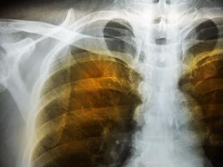 copd lung xray.jpg
