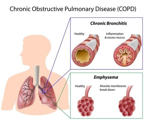 diagram of chronic bronchitis and emphysema