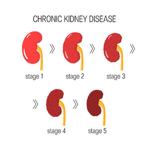 development of kidney disease