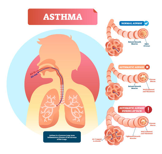 diagram of how asthma works