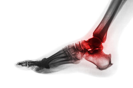 arthritis in ankle