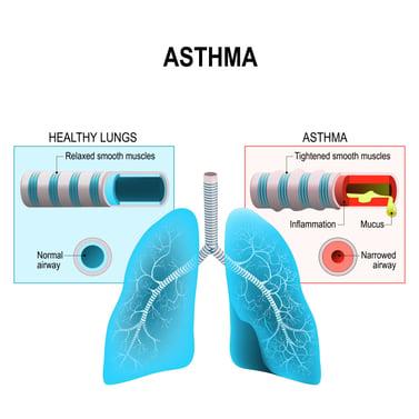 healthy versus asthmatic lungs