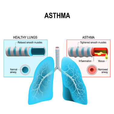 healthy versus asthmatic lungs