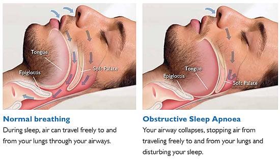 obstructive-sleep-apnea.jpg