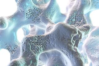 osteoperosis.jpg