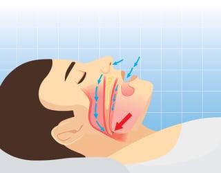 sleep apnea diagram.jpg