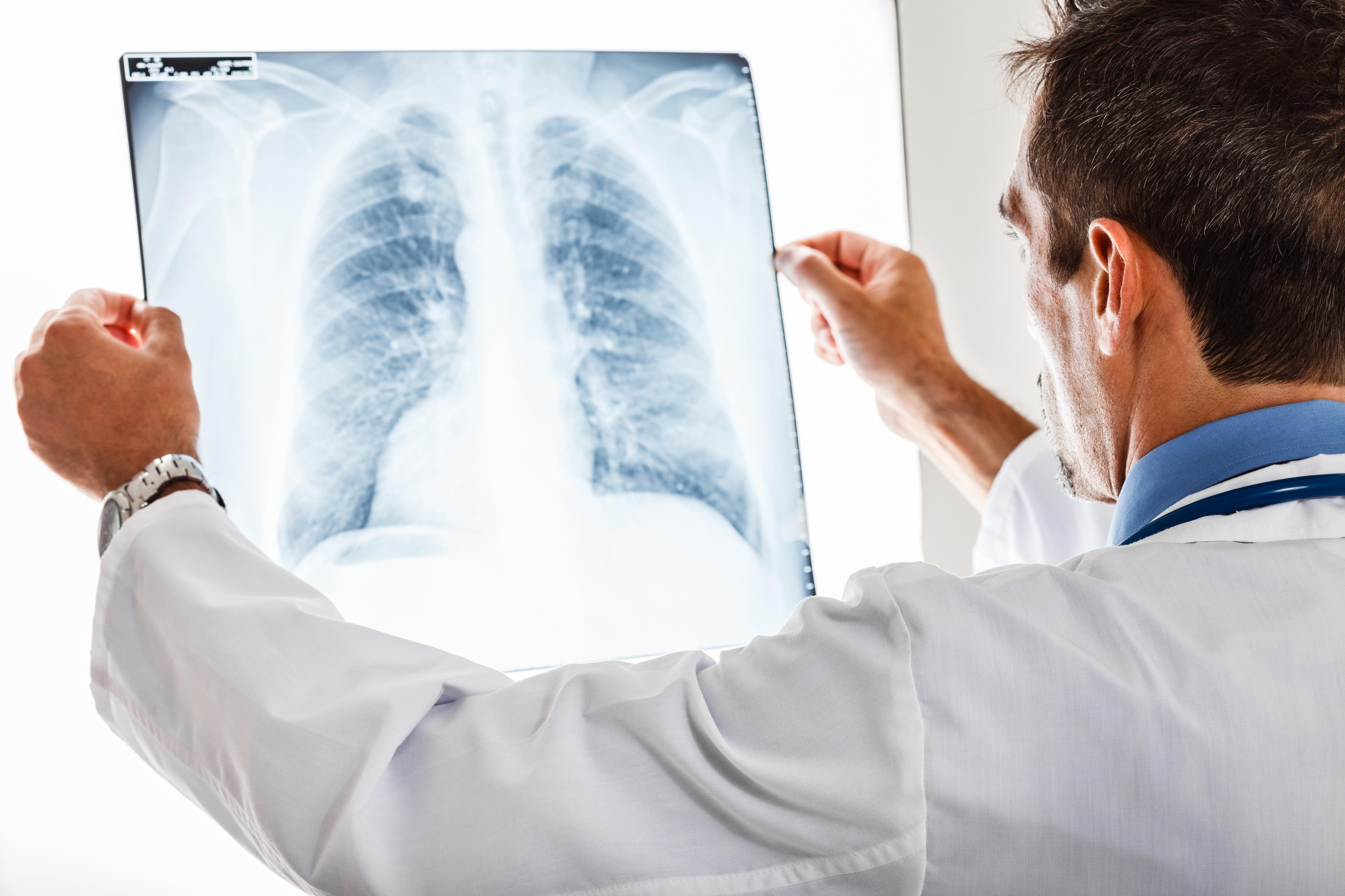 lung xray.jpg